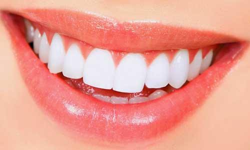 Cara Memutihkan Gigi Secara Alami Dan Cepat Dalam 1 Minggu