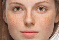 Cara mengatasi hiperpigmentasi kulit
