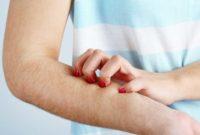 Cara menghilangkan gatal pada kulit secara alami