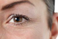 Cara menghilangkan kerutan di bawah mata