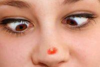 Cara menghilangkan jerawat batu di hidung
