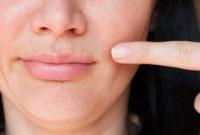 Cara Menghilangkan Jerawat di Bibir